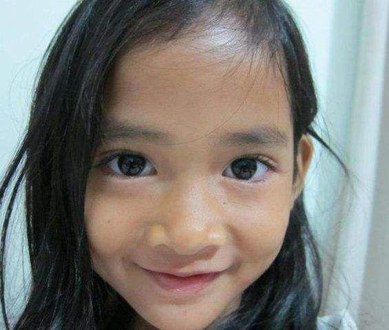 Penyebab Kematian Angeline Diduga Karena Adanya kekerasan Pada Tubuh Korban
