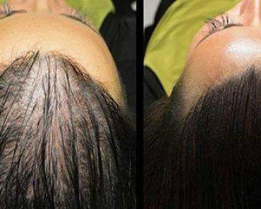 Preparat din ulei de cocos și lămâie transformă părul alb în culoarea sa naturală