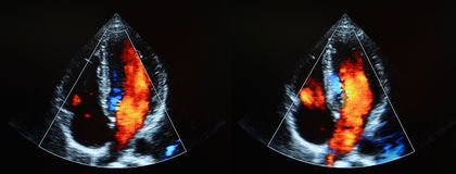 An echocardiogram is done both before and after your heart is stressed either by having you exercise or by injecting a medicine that makes your heart beat harder and faster. Echocardiography is helping the doctor to learn more about your heart conditions. We provide echocardiography test to detect congenial heart defects.