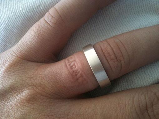 Ring that leaves imprint on finger