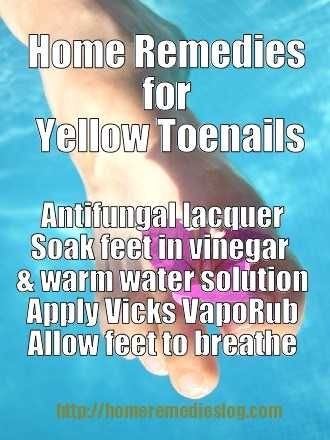 How to Get Rid of Yellow Toenails - Nail Fungus Treatment