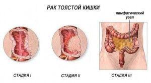 32 300x166 Причина заболевания раком прямой кишки кроется в неправильном питании, приведшем к запорам, хронических болезнях желудочно-кишечного тракта – проктиты, колиты, анальные трещины. Наличие доброкачественных опухолей считается фактором риска. Вредные привычки курение и алкоголизм увеличивают шансы заболеть раком.