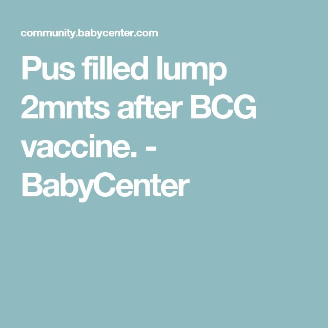 Pus filled lump 2mnts after BCG vaccine. - BabyCenter