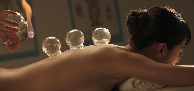 3 Reasons Everyone Should Try Cupping - Better health is on everyone's list for the new year and cupping is wonderful technique that can improve your health and provide numerous benefits.