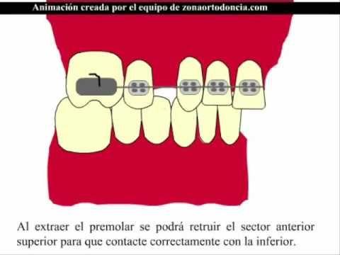 Solución de una clase II dental quitando 2 premolares sup. Demostración animada de la posible solución de una clase II dental mediante la extracción de dos premolares superiores.
