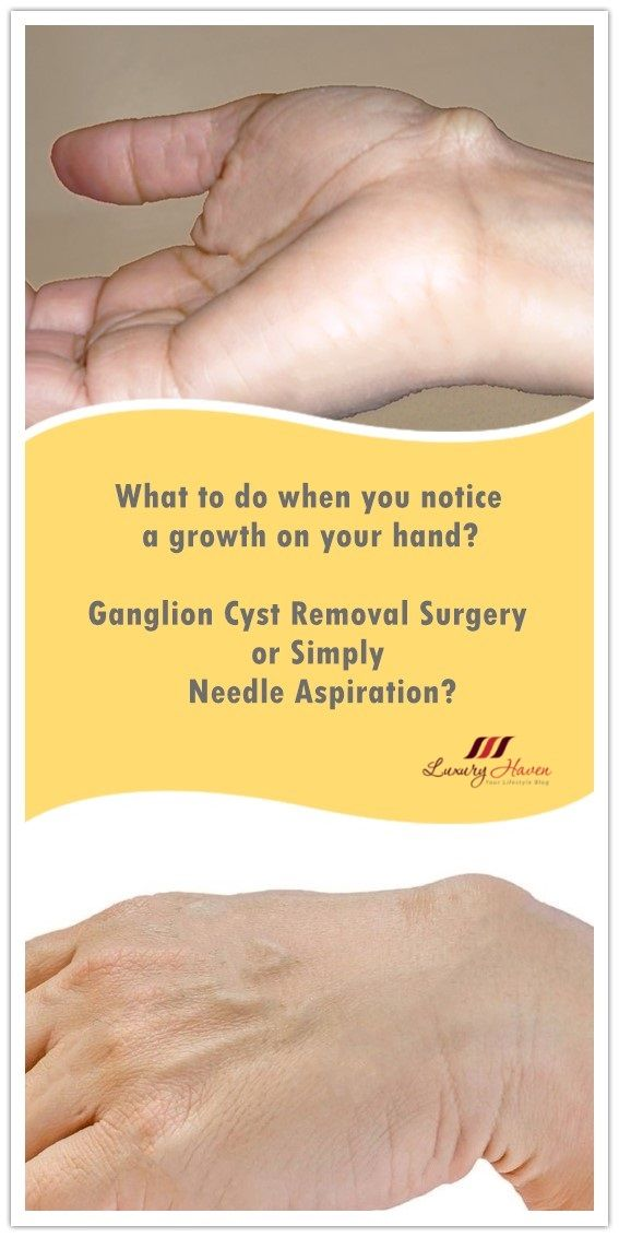 Ganglion Cyst Removal Surgery or Simply Needle Aspiration