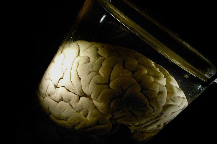 Allt fler får diagnosen adhd och autism. Nu visar neurobiologisk forskning att flera psykiska sjukdomar kan bero på en koppling mellan ett stört immunsystem och hjärnans utveckling.