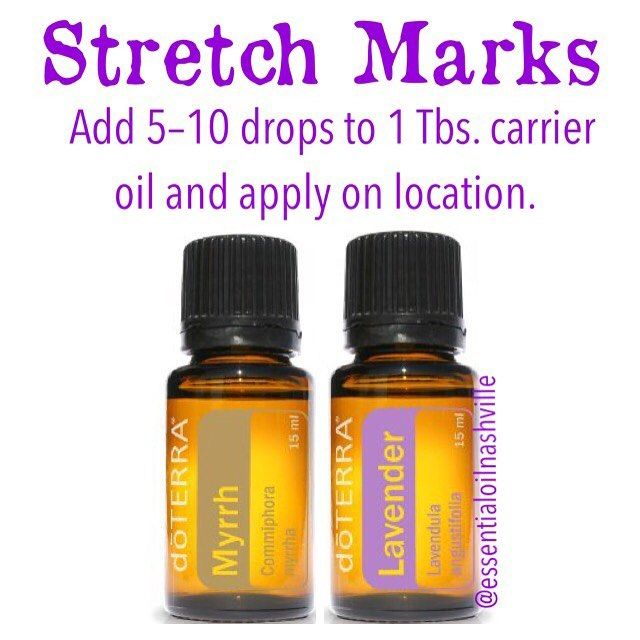 Use lavender and myrrh essential oils for stretch marks.  Follow…