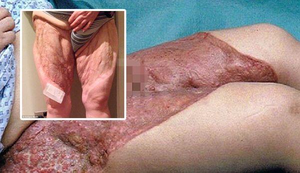 Wanita ini hampir kehilangan kaki yang dijangkiti bakteria pemakan daging selepas mencukur bulu kemaluan   Seorang ibu kepada tiga orang anak berkongsi pengalaman yang beliau hampir kehilangan kedua belah kakinya akibat terkena jangkitan bakteria pemakan daging selepas mencukur bulu kemaluannya lapor Daily Mail.  Wanita ini hampir kehilangan kaki yang dijangkiti bakteria pemakan daging selepas mencukur bulu kemaluan  Dana Sedgewick 44 dari Sheffield berkata pada Mei 2012 beliau mencukur bulu…