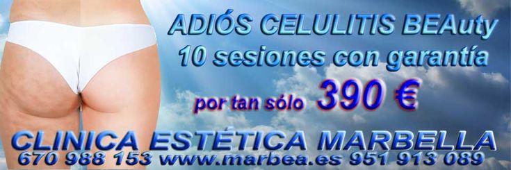 Eliminar manchas Marbella Tratamientos para borrar marcas de acné Marbella. eliminar lineas de expresión Marbella eliminar cicatrices quemaduras Marbella Tratamiento para eliminar la celulitis Marbella relleno de surcos Marbella.