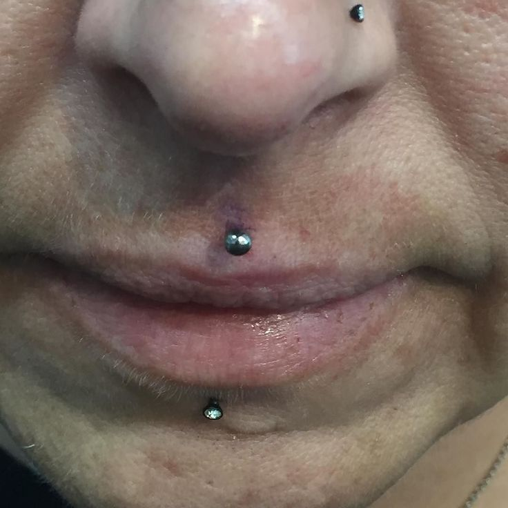 This was an interesting one to pierce from yesterday .  Philtrum from me - the rest from someone else.  Alignment Alignment !  #philtrum #philtrumpiercing #piercing #lippiercing #propiercer #torontopiercing #piercingtoronto #alignment #aceandswordtattoos