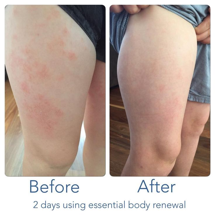 """Shared Testimonial : """"This is my 9 year old son who gets quite bad eczema. I am soooooo happy with the results after only 2 days of using these amazing products!!!"""""""