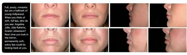 Full, Pouty #lips