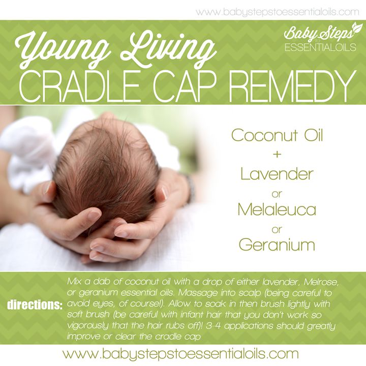 Oils for cradle cap! For more oil info go to www.thelivingdrop.com