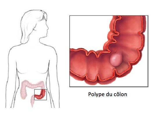 Il se peut que vous ayez entendu parler des polypes du côlon, et même que vous-même ou que quelqu'un de votre entourage en souffre.