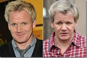 Gordon Ramsay, 50 Celebrities Who Have Had Hair Transplants