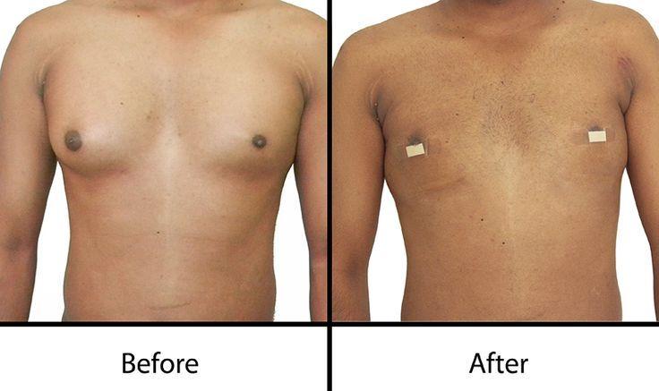 #Breast #Gynecomastia #Hyderabad #Male #reduce #Si…
