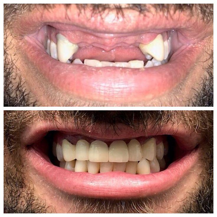 Before and After (Dental Crowns/Bridge) Dental implants