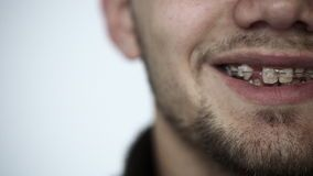 Young man with braces on teeth opens his eyes looking at camera and smiling. stock video