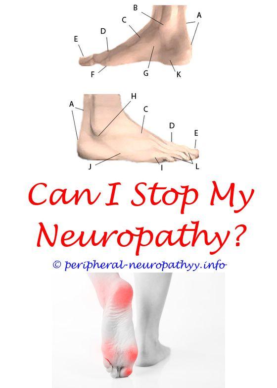 vodka neuropathy - gout or neuropathy.anterior ischemic neuropathy peripheral neuropathy and barometric pressure hereditary sensory and autonomic neuropathy mental retardation 8048728950