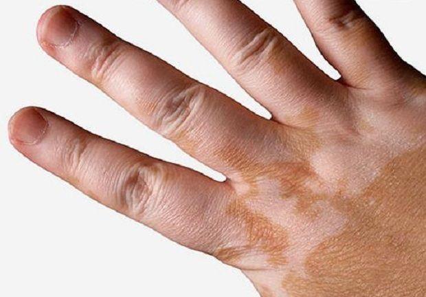 Vitiligoya Savaş | Bitkiblog.com