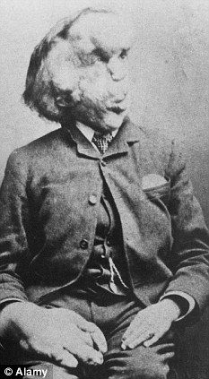 Joseph Merrick, Elephant Man.  Proteus Syndrome, cancer or inflammation?  http://www.dailymail.co.uk/sciencetech/article-1367795/The-Elephant-Man-died-weight-giant-head-crushed-spinal-cord.html