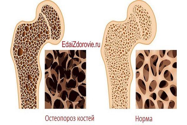 Как восстановить костную ткань — БУДЬ В ТЕМЕ
