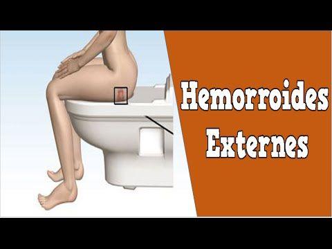 http://soigner-hemorroides.good-info.co     Hemorroides Externes, Remede Hemoroide, Comment Soigner Hemoroide, Traitement Des Hémorroïdes  Hémorroïdes, Quel Remède ?  Trouver un remède contre les hémorroïdes n'est jamais facile. En effet, il n'existe pas un très grand choix de remèdes en pharmacie et de nombreuses personnes sont constamment à la recherche de solutions complémentaires qui soient naturelles.   Aujourd'hui, de plus en plus de gens qui souffrent de maux