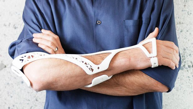 Healing Injuries Could Be Better Thanks To This 3-D Printed Cast http://www.fastcodesign.com/3049149/healing-injuries-could-be-better-thanks-to-this-3-d-printed-cast?partner=rss&utm_content=buffer84dc3&utm_medium=social&utm_source=pinterest.com&utm_campaign=buffer #3dprinting #medical