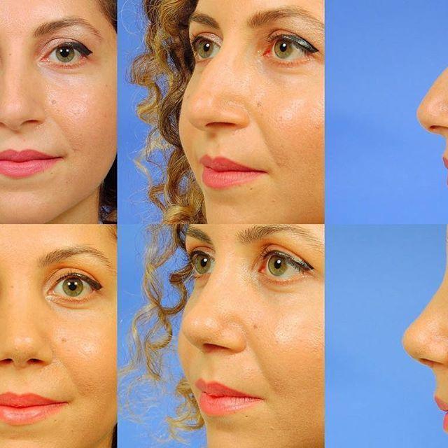 Merhabalar ☺️ Çarşamba gününde konuğumuz, çok sevgili hastam Hatice Hanım. Operasyon öncesi fotoğraflara bakıldığında; - Oldukça uzun - Kemerli - Yüzünün sağ tarafına doğru, oldukça belirgin bir aks eğriliği - Düşük bir burun ucu vardı 👉🏻Henüz 1.5 ayda geldiğimiz yer; - İdeal uzunlukta bir burun✔️ - Kadınsı hatlarda çok şık bir kavis✔️ - Neredeyse %100 orta hatta taşınmış ✔️ - İdeal ölçülerde burun ucu rotasyonuna sahip bir burun✔️ Özetle #BurunProfesörü ile mutlu hastalar...😉 ☎ 0533 151…