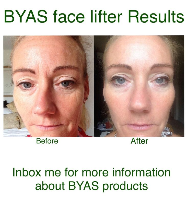 Great results using the BYAS face lifter, contact me today for more information…