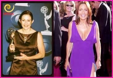patricia heaton breast - http://plasticsurger.com/patricia-heaton-breast/