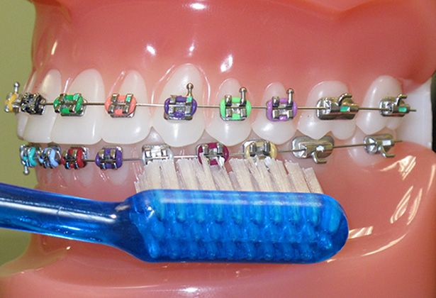 Teeth with Braces in Doha Dental center