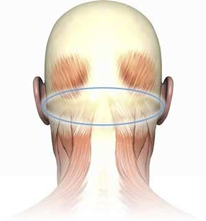 How to find and massage Perfect Spot #1, an area of common trigger points in the suboccipital muscles of the neck.