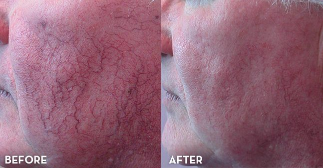 how to get rid of capillary veins on face