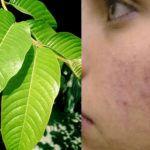 beneficios de hojas de guayaba