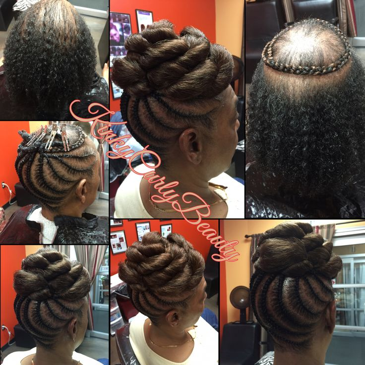 Alopecia Who Hair Styles By Kinky Curly Beauty S Hair