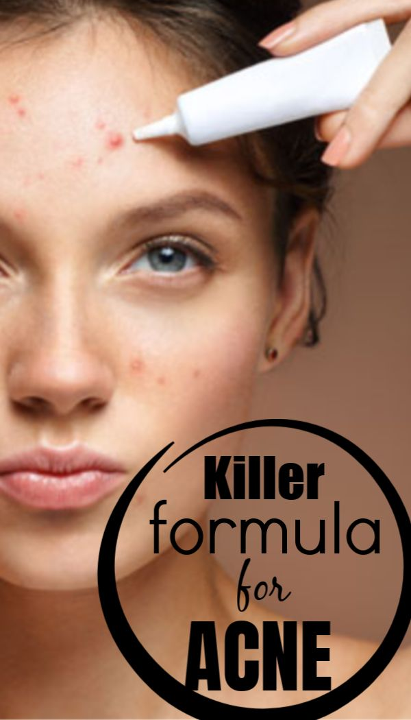 The Acne killer formula, kills pimples and acne in just one night, no scars