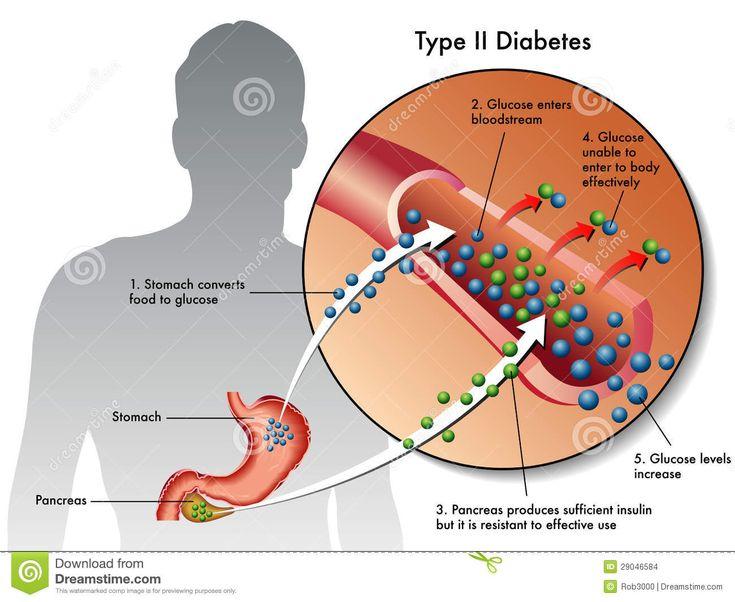 diabetes mellitus type 2   Ejemplo médico de los síntomas del tipo - diabetes 2.