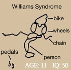 Salk Institute for Biological Studies - Williams Syndrome