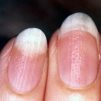 What Your Looks Say About Your Health-Pitted Nails