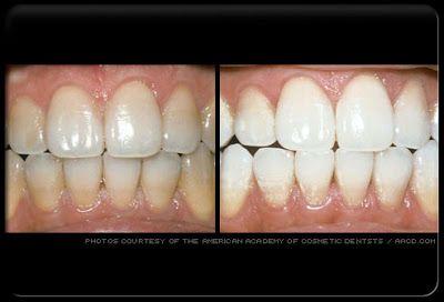 Blanchissement dentaire