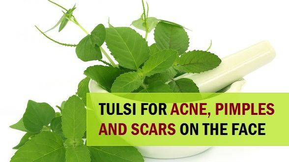How to use Tulsi to Treat Pimples and Acne Scars on the Face