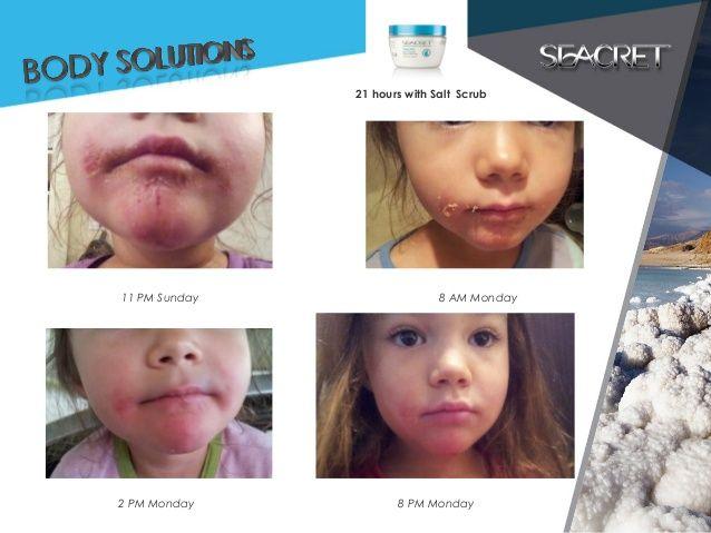 The SEACRET to baby-soft skin! #baby #infant #children #toddler #parabenfree #safe #eczema #skinsolutions #skincare #seacret #saltscrub