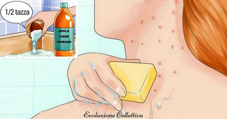 Come trattare efficacemente l'eczema e le macchie della pelle mediante l'utilizzo dell'aceto di mele: guida passo passo per eliminare le tossine.