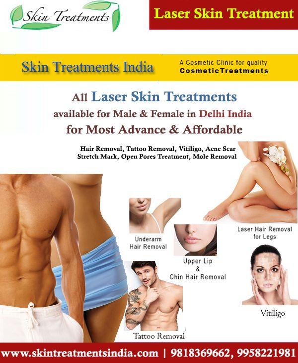 #LaserTreatment #TattooRemoval #Tattoos #SkinTreatment #SkinCareClinic #Delhi #India #LaserTreatment #vitiligotreatment #whitespottreatment #skinpigmentation #laserhairremoval #moleremoval #acnescar #openpores