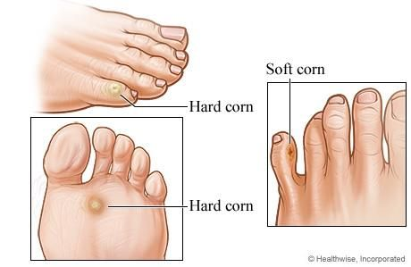 HOME REMEDIES FOR CORNS