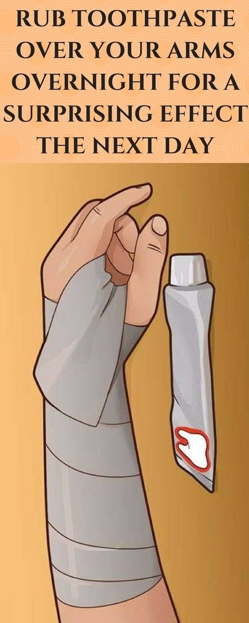 Home Remedies Org recommends mixing toothpaste with lotion and applying the homemade salve to a bruise before bed. Loosely cover the bruise