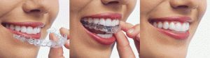 Make a Visible Smile with Invisible Invisalign Clear Aligners in London!