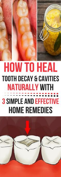 Tooth decay remedies